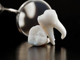 となりの歯を守るインプラント治療