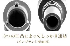 3つの凸凹によってしっかり連結(インプラント断面図)