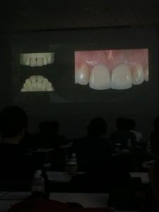 インプラントと審美歯科のセミナー